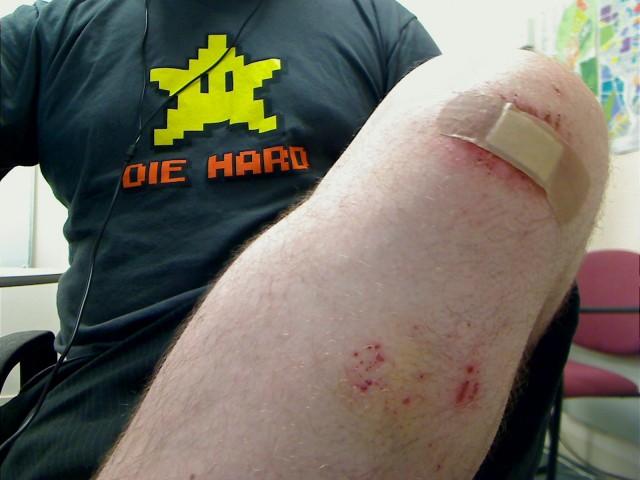 Mountain biking gravel rash. :D